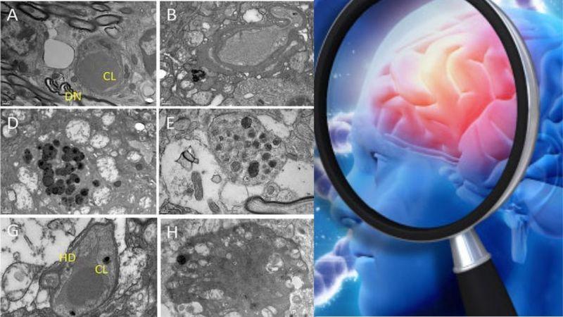 Ce cauzează boala Alzheimer? Oamenii de știință sunt foarte aproape sa descopere în sfârșit!